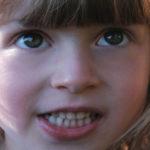 Стволовые клетки молочных зубов